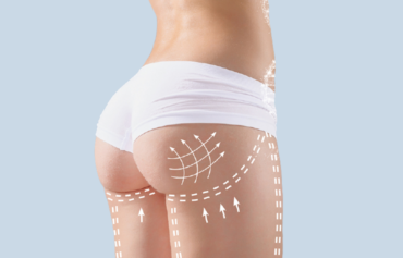 Buttocks remodeling